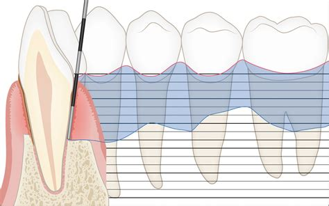 periodontal-health